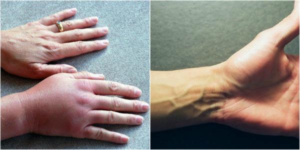 Чому німіють руки: 7 причин, які заставляють задуматися про здоров'я