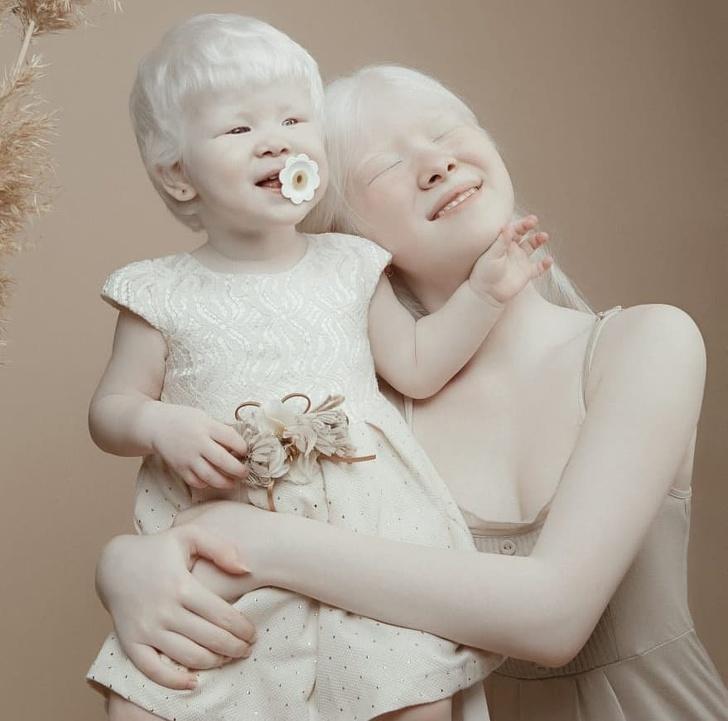 Сестри-альбіноси, які народилися з різницею в 12 років, дивують Інтернет своїми фотографіями