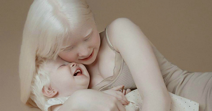 Сестри альбіноси з Казахстану